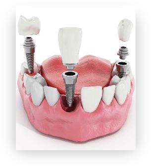 Screenshot 2020 11 05 Implantologia dentale a Alessandria e Asti DentalBio | Dentalbio