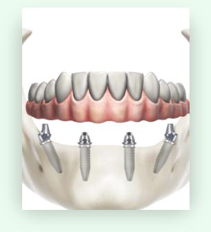 Screenshot 2020 11 05 Implantologia dentale a Alessandria e Asti DentalBio1 | Dentalbio